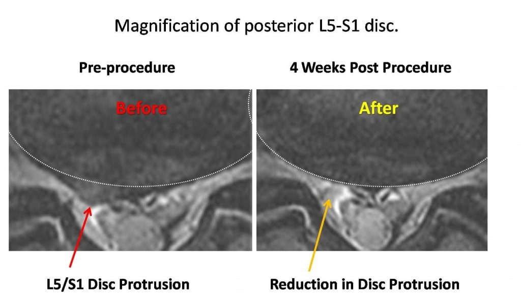Magnification of L5-S1 disc bulge treated without surgery with an injection of stem cells