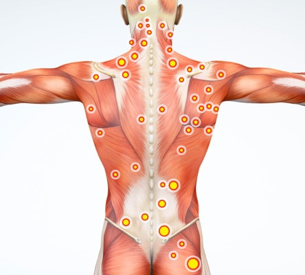 Medical illustration showing the muscles from the neck to the lower back with trigger points indicated