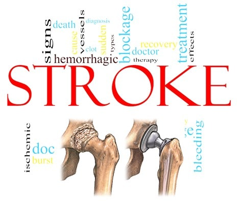 hip replacement stroke side effects