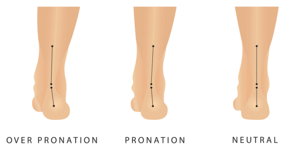 Medical illustration showing neutral human foot, a foot with pronation and a foot with over pronation