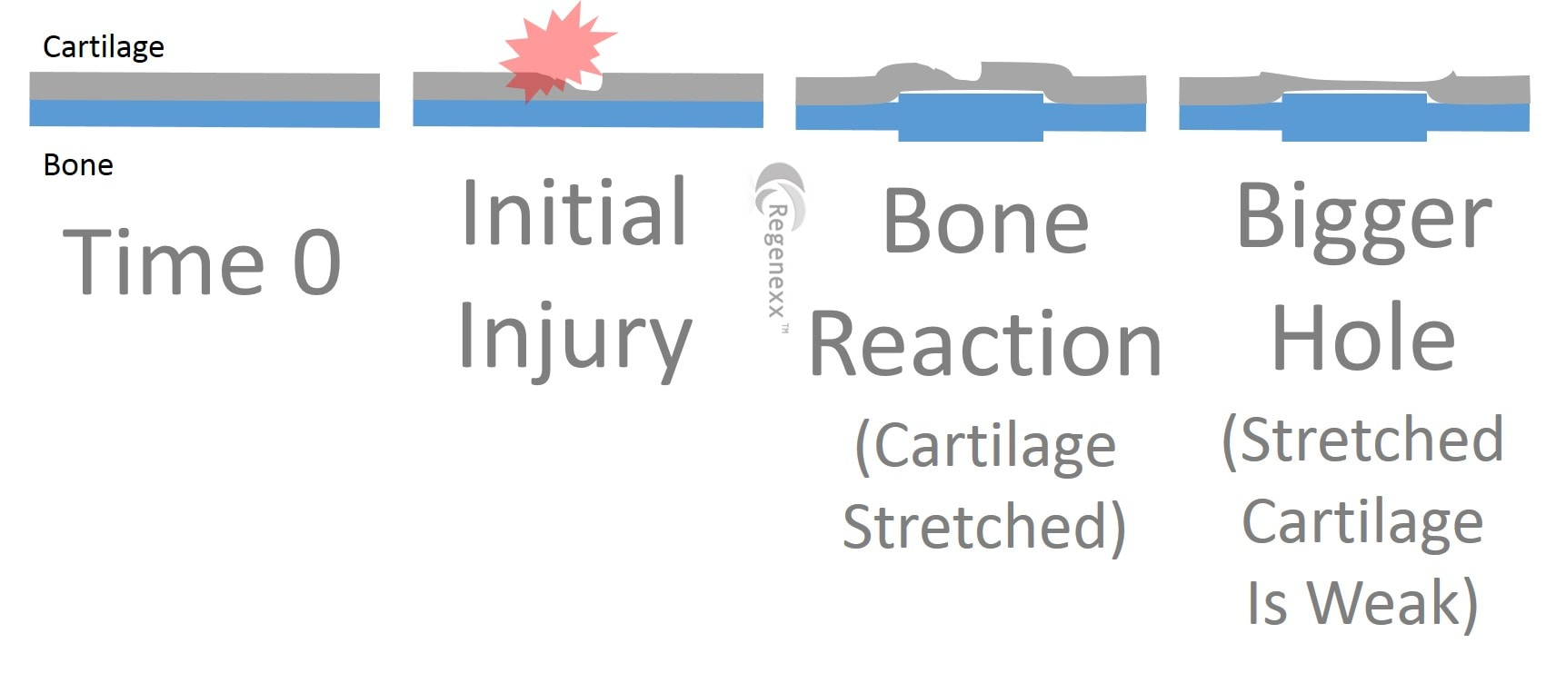 Hole in Cartilage