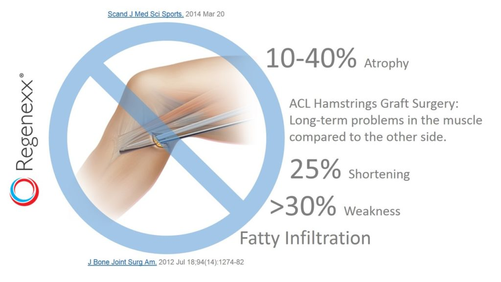 hamstring acl surgery complications