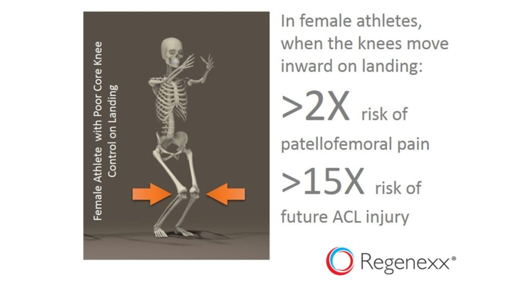 acl injury causes