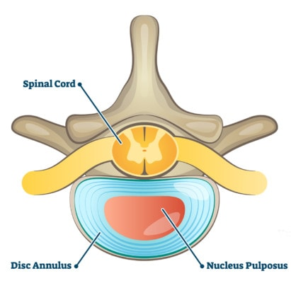 Medical illustration showing a cross section of a spinal cord disc