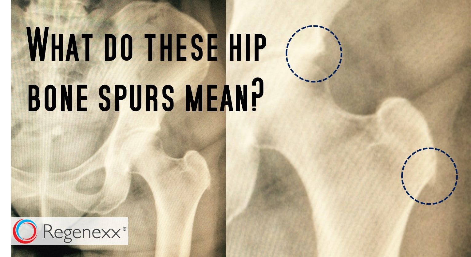 bone spur pain - an xray may be telling the wrong story