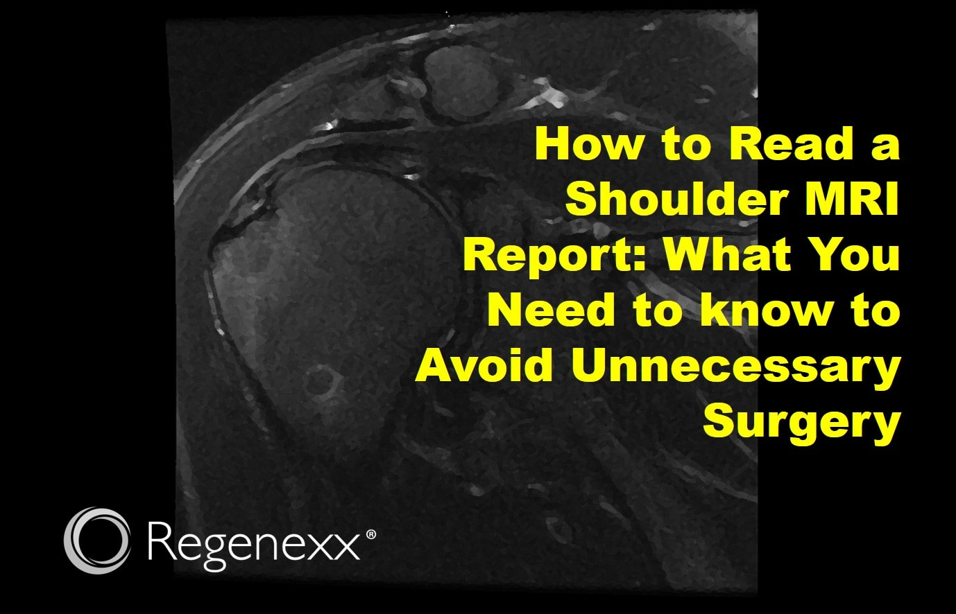 how to read a shoulder mri report