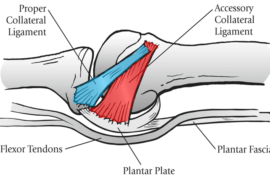 plantar plate ligaments
