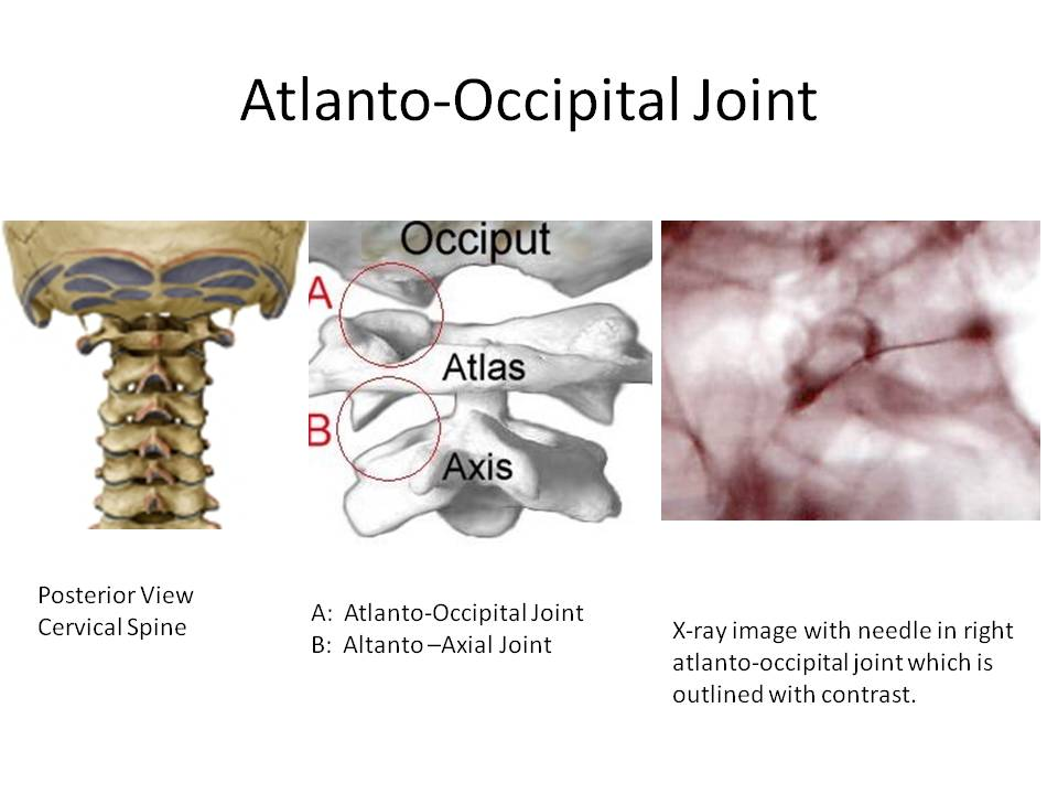 C0-C1 joint