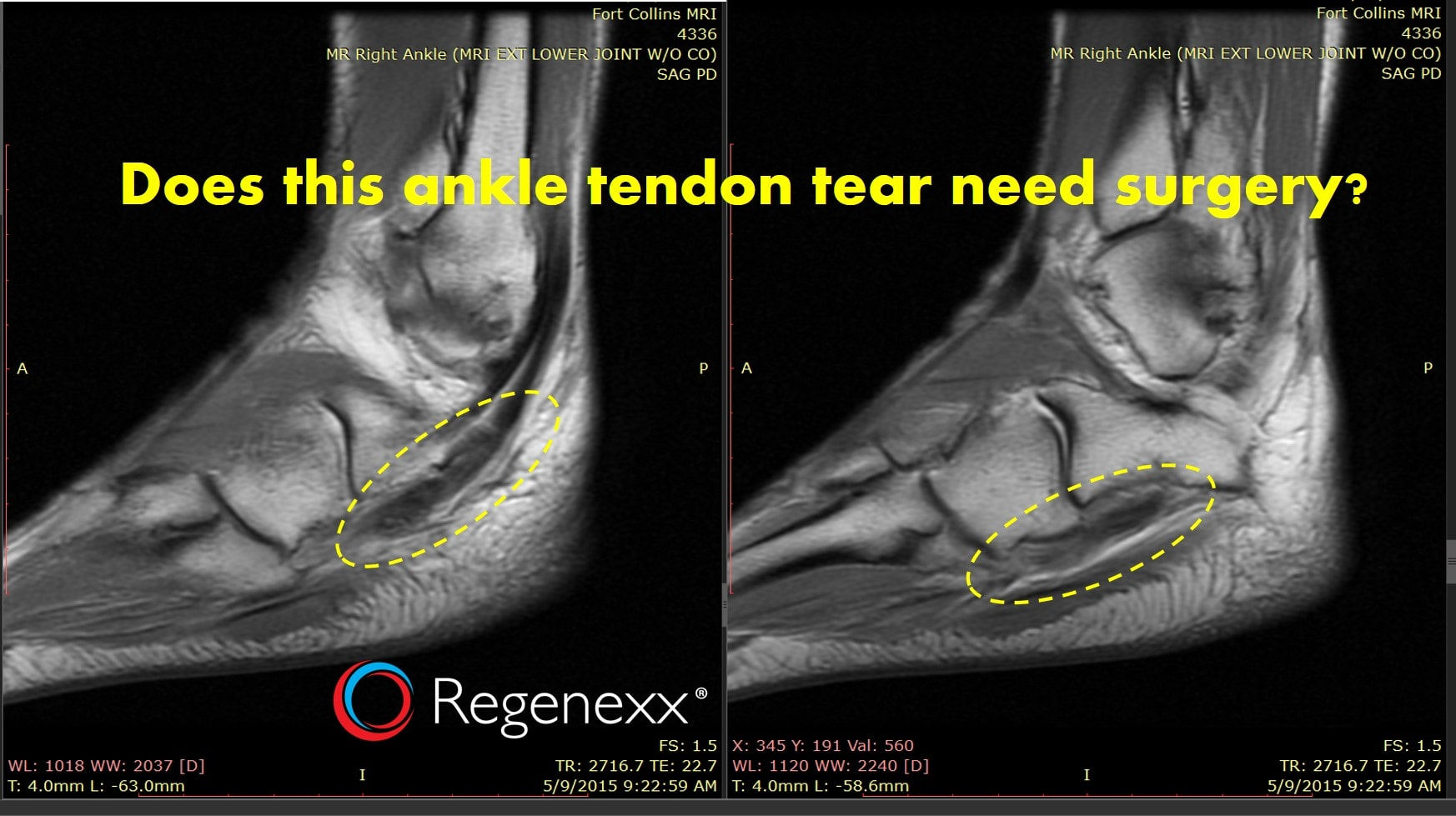 how-to-heal-a-torn-tendon-naturally