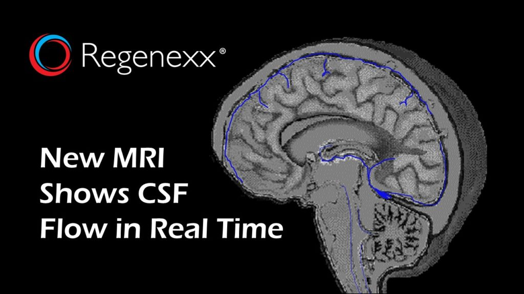 Brain and Cervical CSF Flow MRI