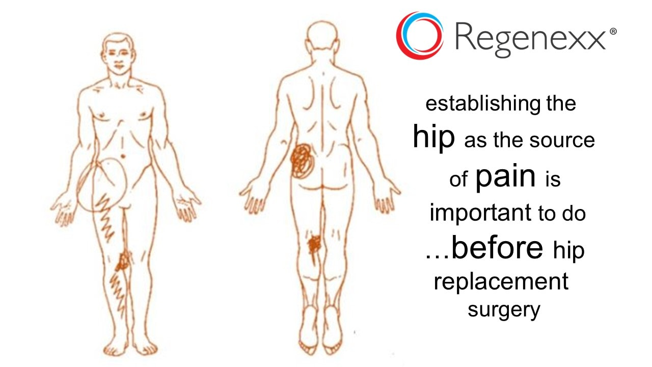 Hip Replacement Surgery >> Hip Replacement Pain A Frustrated Patient Regenexx