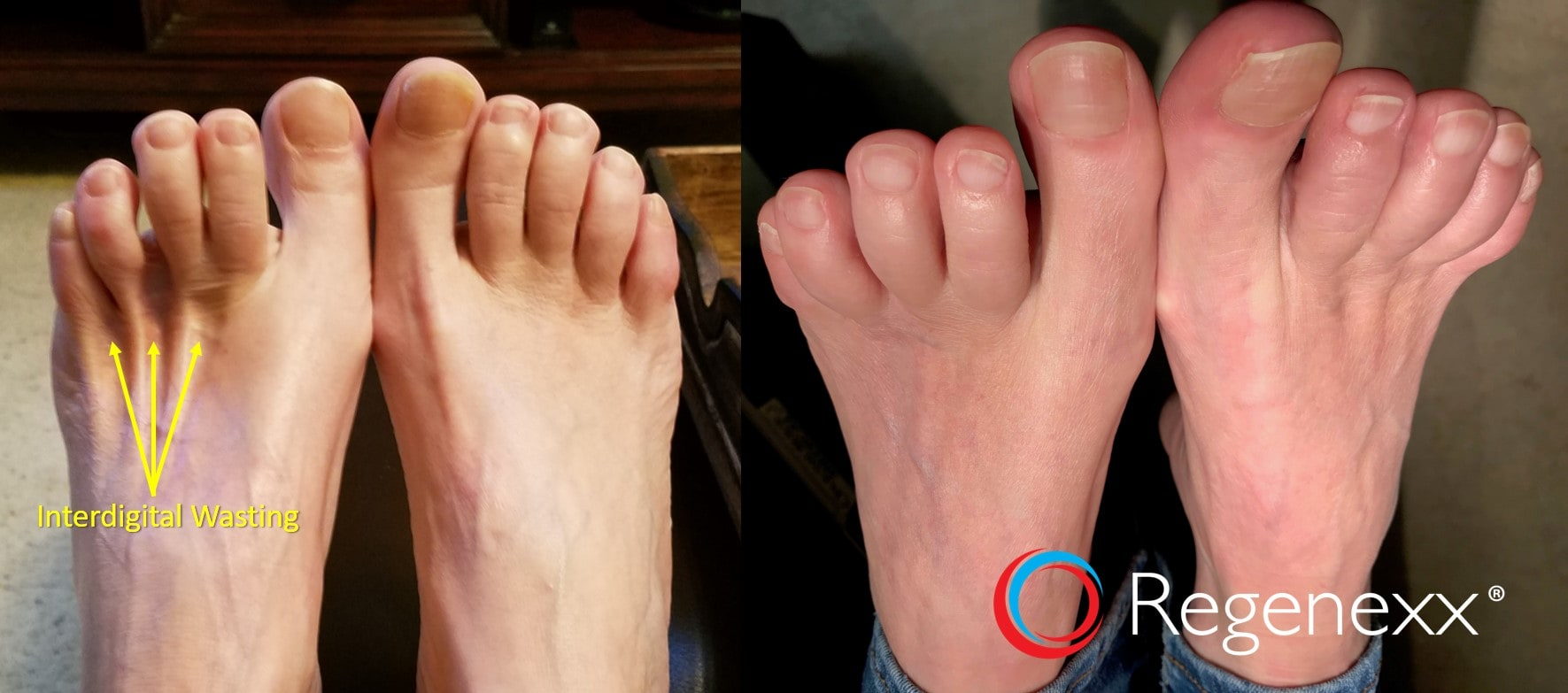 feet muscle wasting