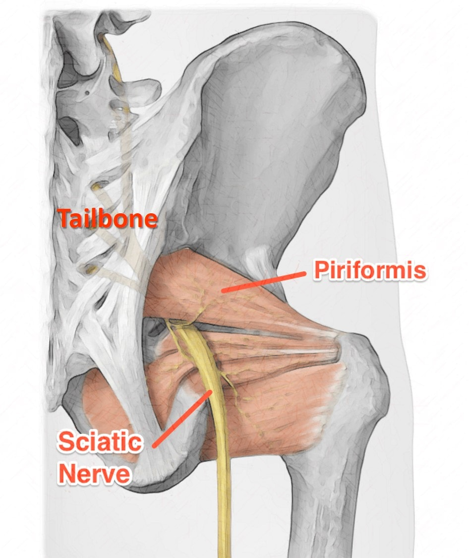 piriformis injection