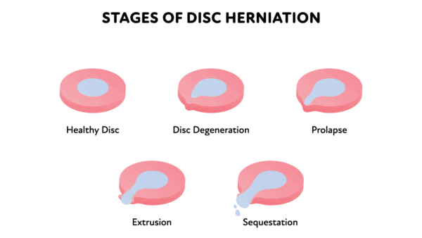 Illustration of the stages of disc herniation