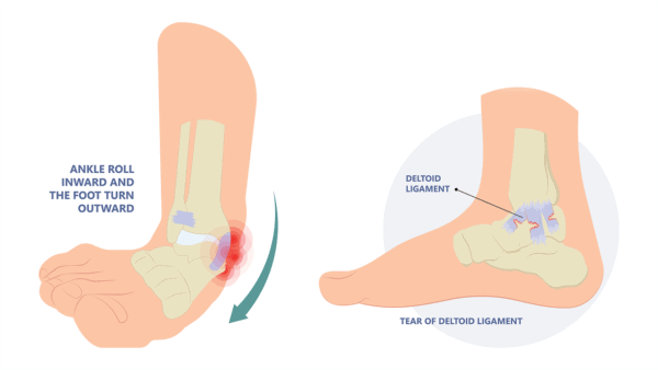 Medical illustration of the the ankle turning outward showing a tear of the deltoid ligament next to a lateral view of the torn deltoid ligament