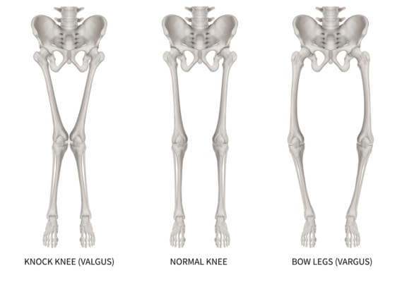 Medical illustatration showing the lower sections of three skeletons. One is normal, one is a knock knee or valgus and one is bow legs or vargus