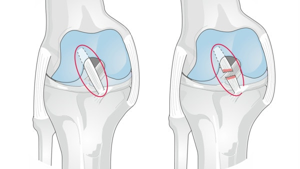 Medical illustration showing a healthy and an injured anterior cruciate ligament (ACL) of the knee